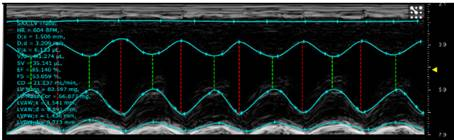 Fig 1. Ultrasound image of C57BL/6 mouse heart