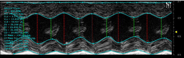 Ultrasound image of C57BL/6 mouse heart 4 weeks after TAC surgery (compensatory hypertrophy of the left ventricular myocardium)