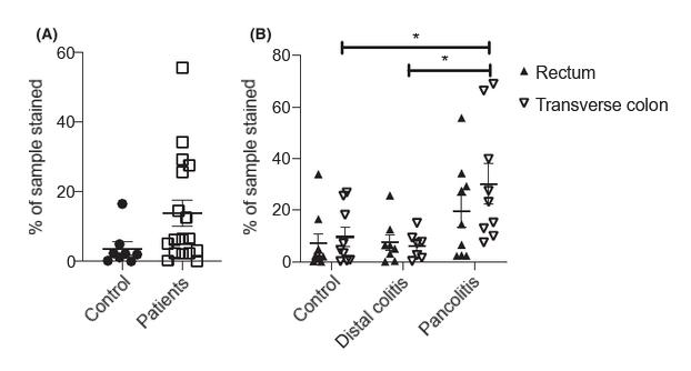 图1. 结肠IL-10表达模式(A)对照组和UC患者直肠IL-10表达的比较(B)对照组、肠远端病变的UC患者和广泛性结肠炎的UC患者直肠和横结肠中IL-10表达的评估。   赛业生物