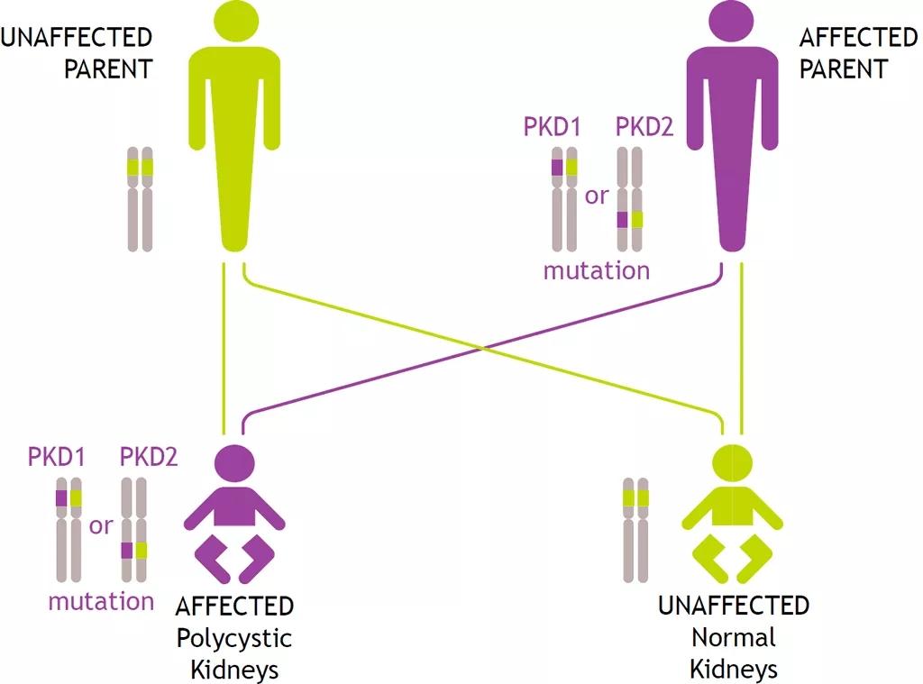 图1. ADPKD遗传家系图   赛业生物