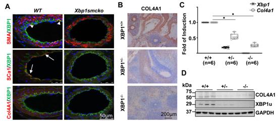 图2. XBP1s对COL4A1在胚胎发育和血管重塑过程中的表达至关重要