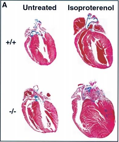 图3. 缺乏 FHL2的小鼠对β-肾上腺素能刺激的肥大反应增强-1