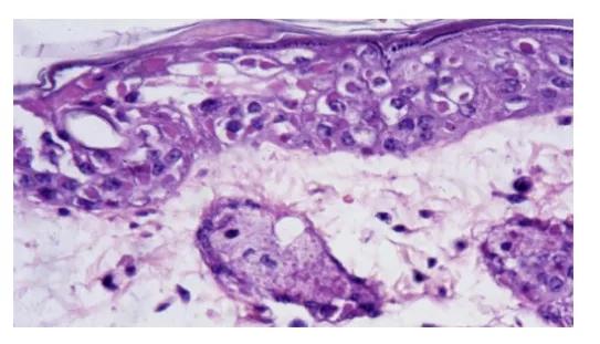 图3. 鼠痘病毒感染小鼠的皮肤。胞质内的包涵体   赛业生物