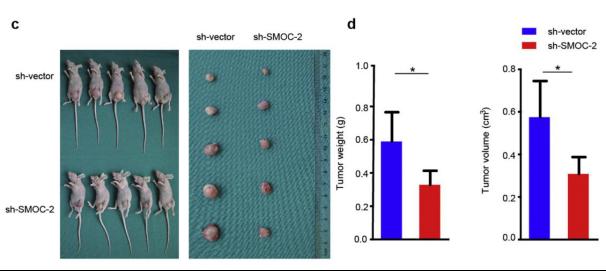 图3. SMOC-2对癌细胞体内成瘤的影响