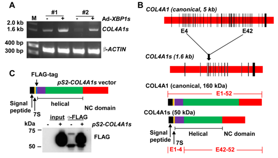 图4. XBP1s诱导表达一种可外泌COL4A1s新异构体