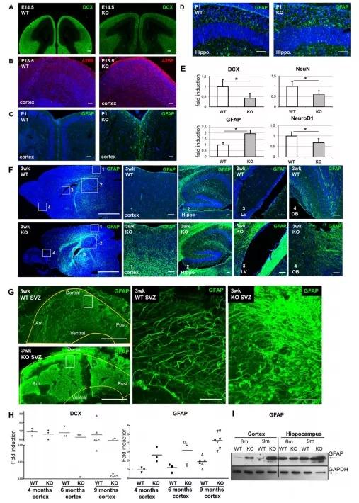 图5. Fhl2 缺陷小鼠显示出过早的神经胶质分化并伴随着年龄的增长加剧GFAP阳性的成熟星形胶质细胞在体内的增生和积累