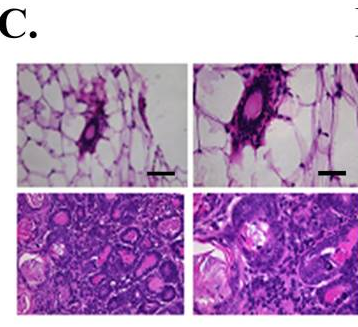 Cyagen - 2 SIRT3 is a mouse tumor suppressor in mitochondria