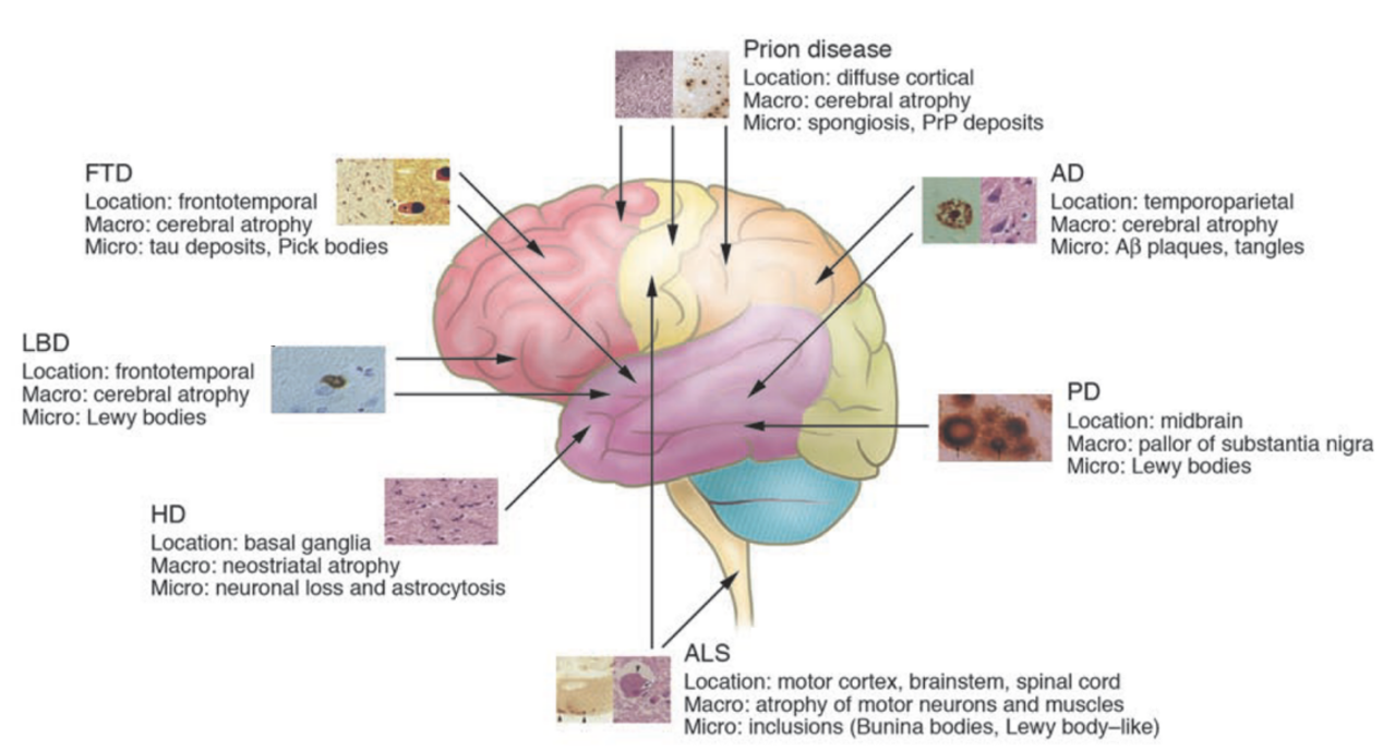 Cyagen | Fig. 2. Brief description of lesions and pathology of major neurodegenerative diseases